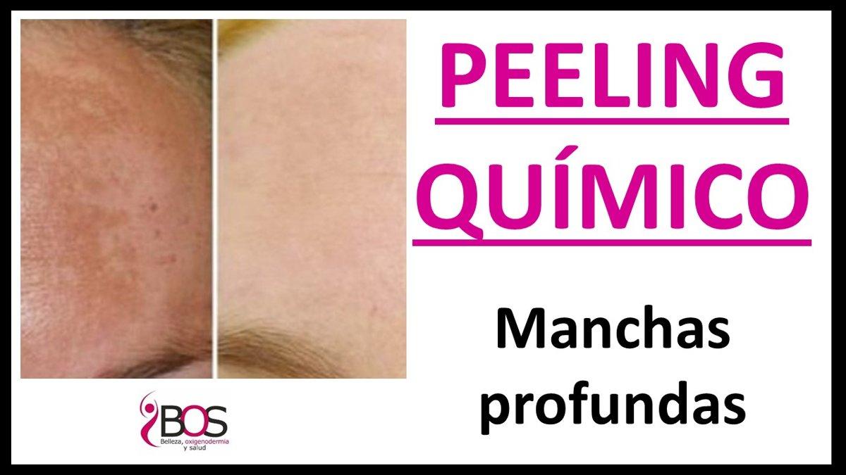 PEELING MANCHAS PROFUNDAS