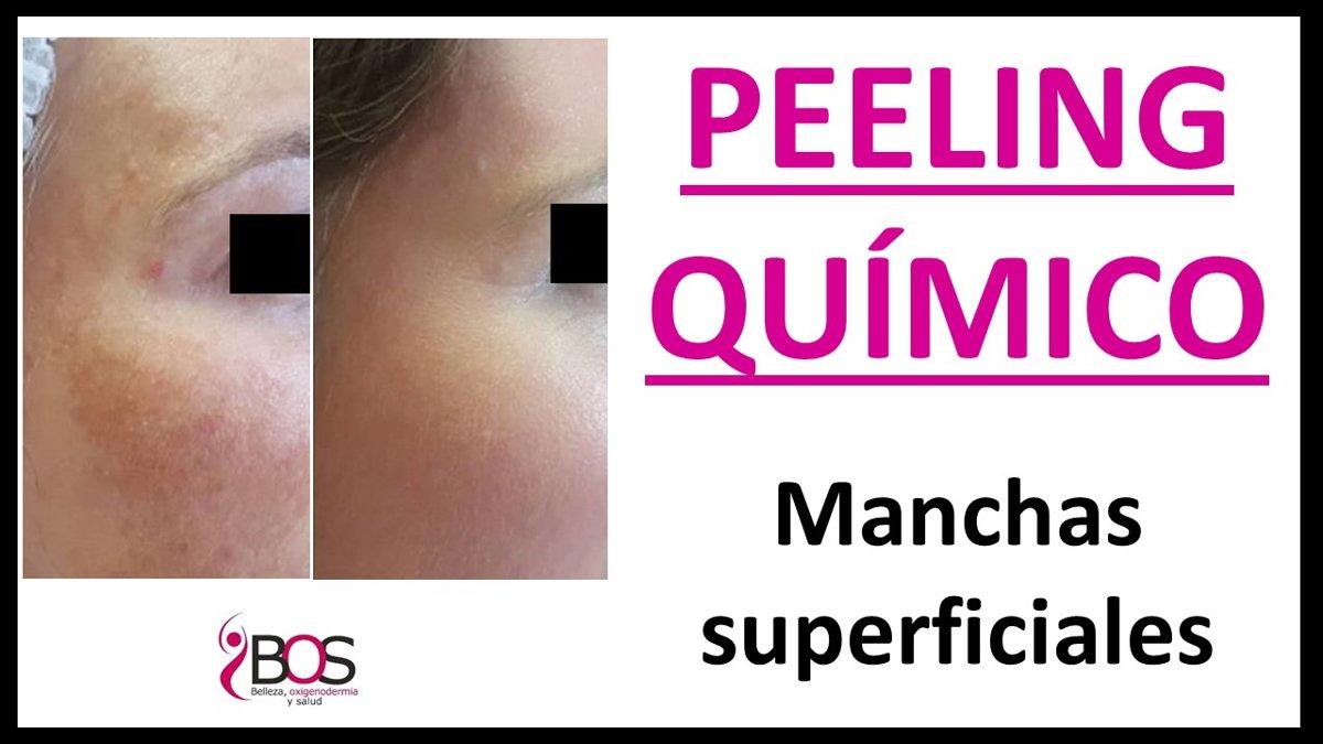 PEELING MANCHAS SUPERFICIALES